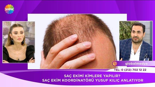 Saç ekimi kimlere yapılır?