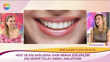Diş beyazlatma nasıl olur?