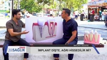 Şimdi Sağlık - 21 Eylül 2019 (Diş implantı, bel ve boyun ağrısı)