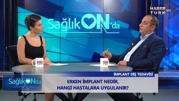 Sağlık ON'da - 23 Eylül 2019 (Erken implant nedir, hangi hastalara uygulanır?)