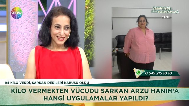 94 kilo veren Arzu Hanım'ın şaşırtan değişimi!