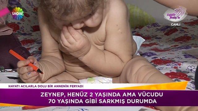 Küçük Zeynep'in amansız hastalığı!