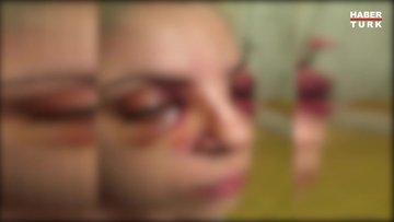 Şizofreni hastasının gözlerini oymaya çalıştığı Burcu, saldırıyı anlattı
