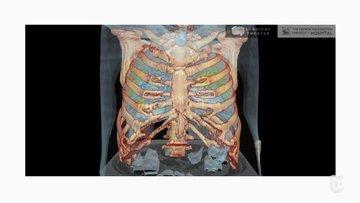 New York Times koronavirüsün akciğeri nasıl istila ettiğini gösterdi