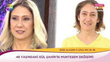 46 yaşındaki Gül Şahin'in ''Büyük Değişimi''