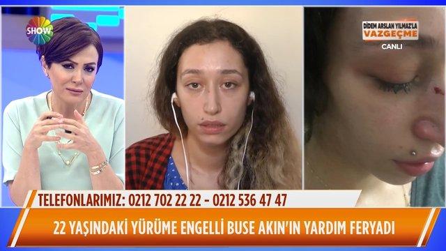 22 yaşındaki yürüme engelli Buse Akın'ın yardım feryadı!