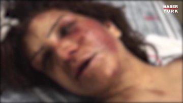 Eşini 5 gün boyunca zincirle dövdü tırnaklarını çekerek işkence yaptı