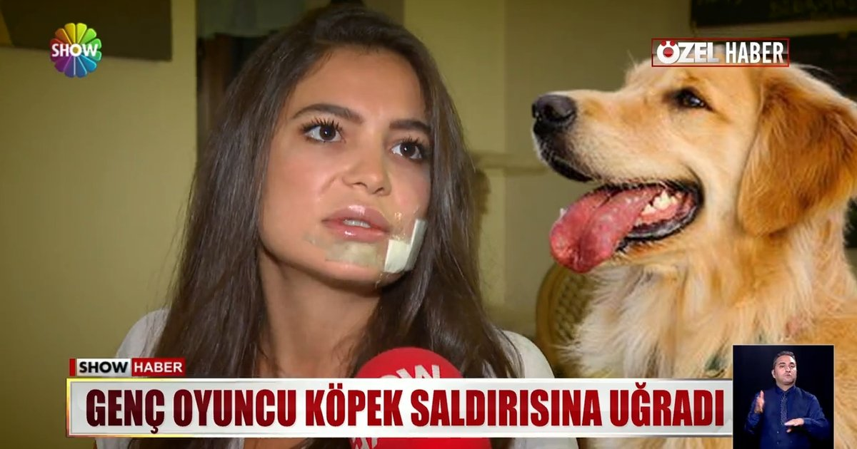 Genç oyuncu köpek saldırısına uğradı! | Show Özel Haber