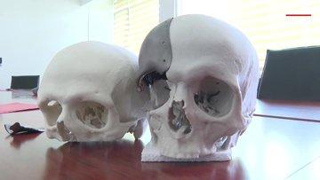 16 yaşındaki Gizemnur, yapay kafatası nakli ile hayata yeniden bağlandı