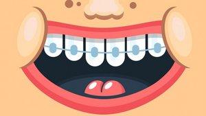 Diş tellerinde hangi malzemeler kullanılır?